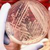 Probiotiklər ishalı önləyir