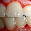 Diş əti xəstəliklərinin səbəbləri