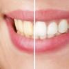 Tərkibində turşu olan qidalar dişlərə zərərlidir