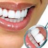 Dişləri daha yaxşı necə ağarda bilərik?