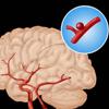 Beyin anevrizmalarında əməliyyatsız müalicə